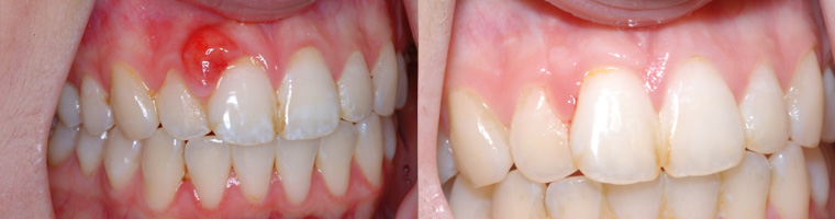 Gingival Lesion Removal in Traverse City, MI